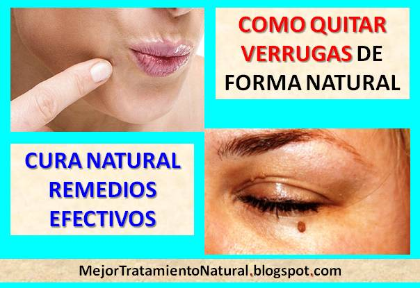 Remedios caseros para eliminar las verrugas faciales