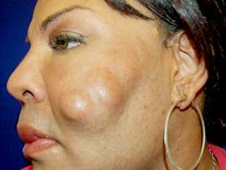 Cara Menghilangkan Lipoma Di Wajah