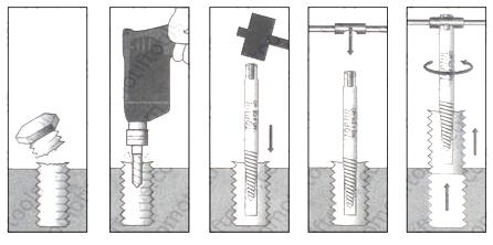 Tips Cara Mengeluarkan Baut Yang Patah Didalam Menggunakan Alat Screw Extraxtor