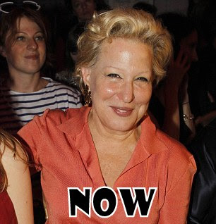 Bette Midler Plastic Surgery Before And After Botox And