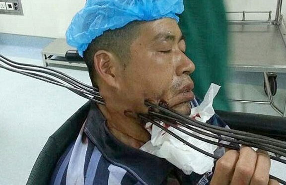 Kecelakaan Kerja Besi Menusuk Seorang Pekerja