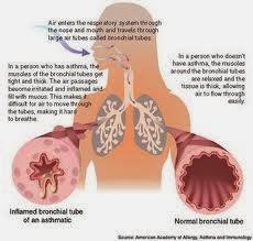 Obat Infeksi Saluran Pernafasan Akut