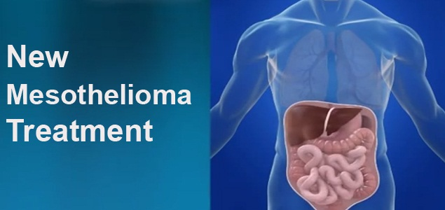 New Mesothelioma Treatment Options