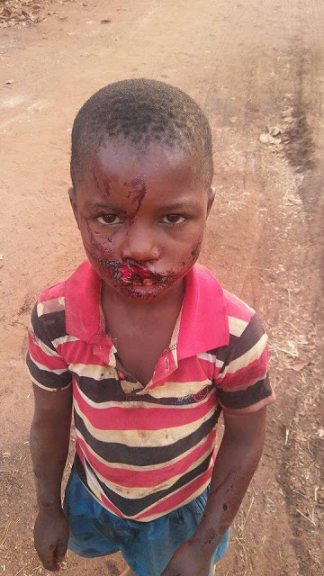 GRAPHIC PHOTO: MENTALLY UNSTABLE MAN BRUTALIZES SON IN IMO STATE