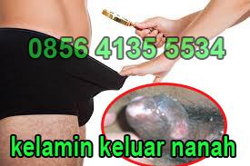 Penyebab Kencing Campur Nanah