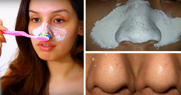 A Very Simple Trick To Get Rid Of Blackheads Forever, Using 1 Ingredient!