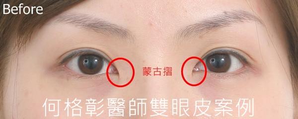 韓式隱痕開眼頭術前