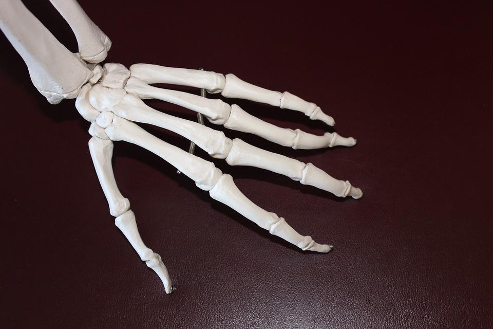 9 Mitos e Verdades sobre artrose