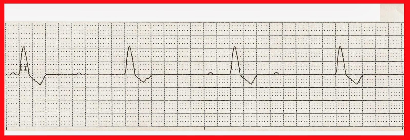 Float Nurse Practice EKG Rhythm Strips 216
