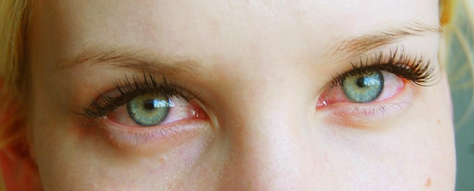 Verestävät Silmät