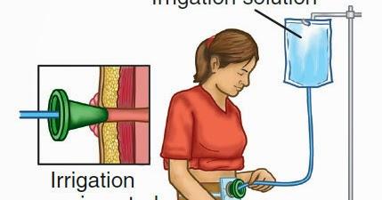 Procedure of Irrigating a Colostomy ~ Nursing