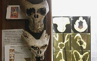 No Cáucaso russo foram encontrados dentro de uma maleta dois crânios que não correspondem a nenhuma criatura conhecida pela ciência.