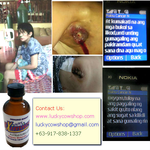 eximius miracle oil cancer treatment