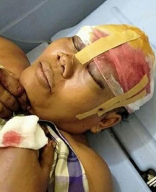 Korban saat dirawat di rumah sakit.
