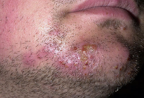 Healthy Life: Ringworm (Tinea)