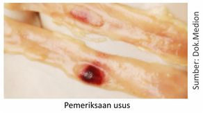 pemeriksaan usus unggas atau ayam