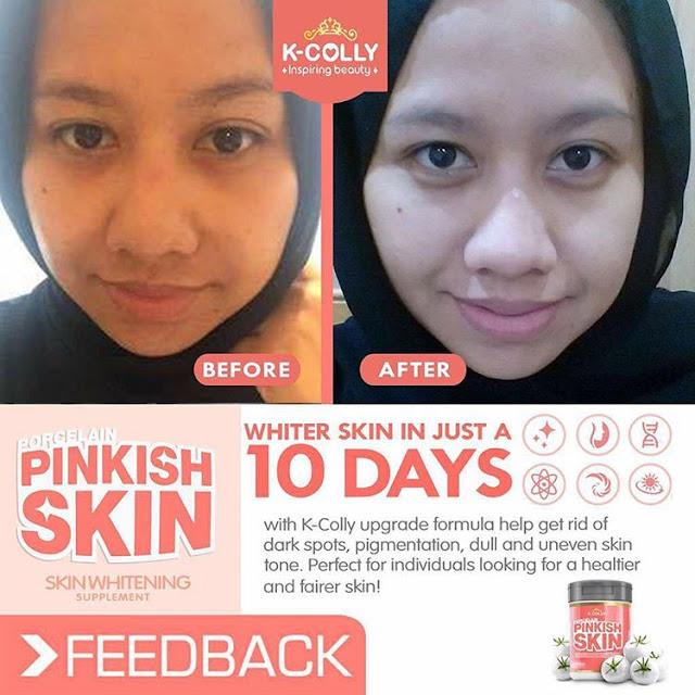 Testimoni K-Colly Porcelain Pinkish Skin