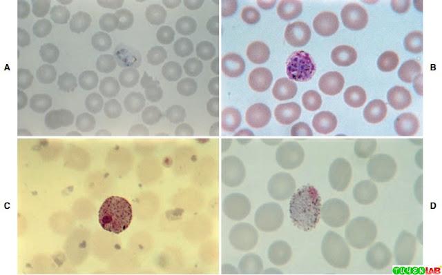 A, Plasmodium vivax trophozoite. B, P. vivax mature schizont. C, P. vivax macrogametocyte. D, P. vivax microgametocyte.