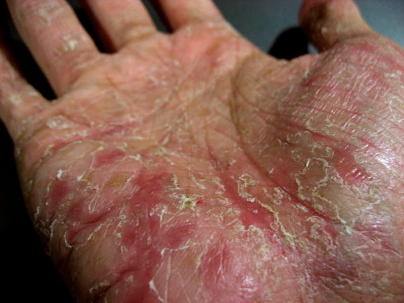 Dyshidrosis Natural Treatment