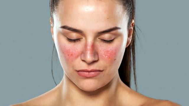 Người bị bệnh lupus ban đỏ có chữa được không?