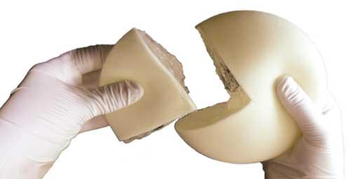Cemuvenezuela caracteristicas de los implantes mamarios - Silicona de poliuretano ...
