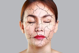 Dry skin - Causes, Symptoms and How to Get Rid of It