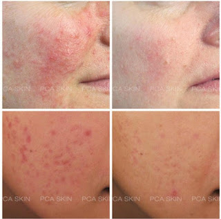 Acne Imposters