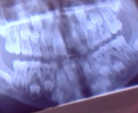 Bir çocuğun gömülü kalıcı dişlerinin röntgen görüntüsü