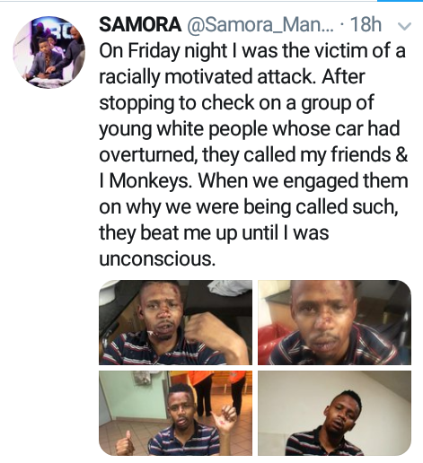 """""""They called my friends and I monkeys"""" - South African radio presenter allegedly assaulted by group of white guys in racially motivated attack"""