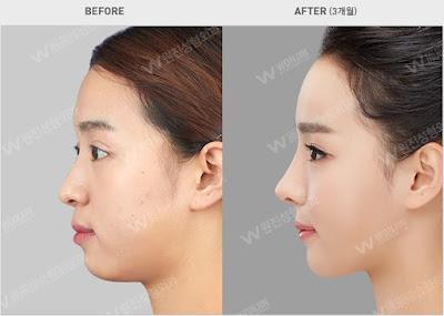 sebelum dan sesudah operasi kontur wajah korea