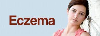 Eczema Disease Home Remedy-Top 20 Remedy