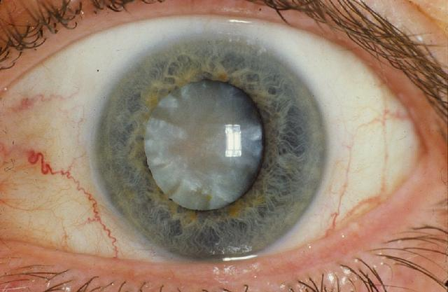 Scientists Have Developed An Eye Drop That Can Melt Away Cataracts