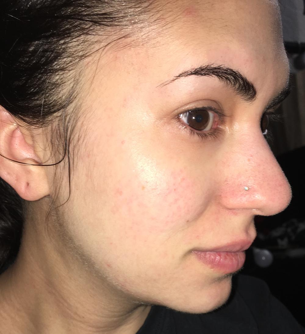 Fungal Acne Skin (Part 1) | Tiny Moon