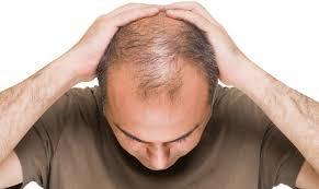 هل هناك سبب لفقدان شعرك؟