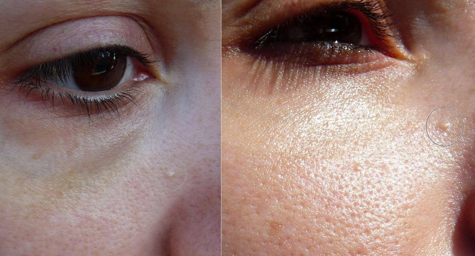 Las mascarillas húmedas para la persona con el aceite de linaza