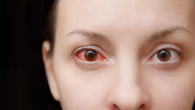 Resiko Penggunaan Lensa Kontak Bagi Kesehatan