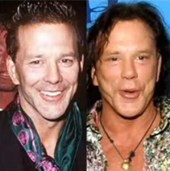 Plastic Surgery Celebrity Before And After Plastic