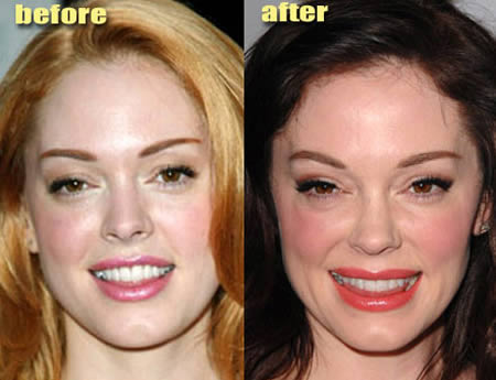 12 Weirdiest Plastic Surgery Makeovers