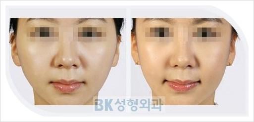 Terrific Bk Plastic Surgery Cheekbone Reduction At Bk Plastic Surgery Hospital Hairstyle Inspiration Daily Dogsangcom