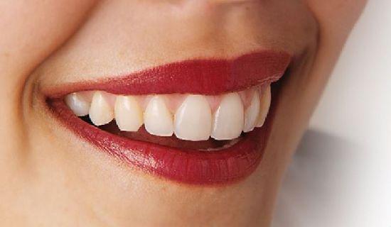 Ingin gigi tampak sehat dan kuat. Ikuti beberapa tips berikut ini.