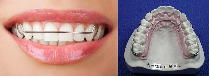 雷詠堯醫師 齒顎矯正BLOG: 維持器的分類