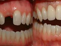 Cara Tumbuhkan Gigi Rongak Hanya Dalam 9 Hari