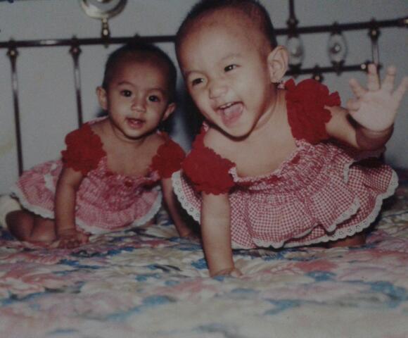 anak kembar identik