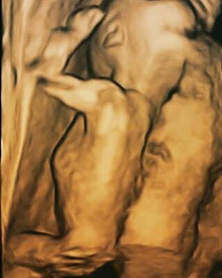 18 haftalık gebelik görüntüsü
