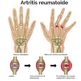 how to stop arthritis getting worse