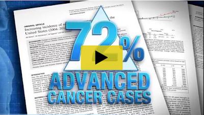 Prostate Cancer Video image