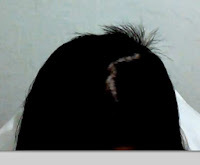 advogado especializado em danos morais cabelo estragado fábricante