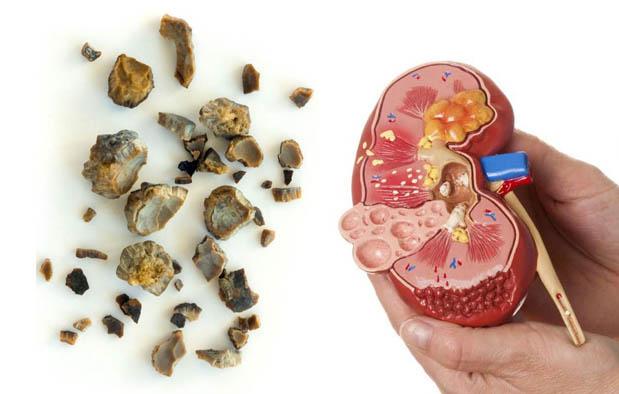 obat sakit ginjal yang alami dan aman dan cepat