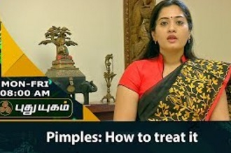Pimples | How to treat it! | Morning Cafe 11-08-2017 Puthuyugam Tv