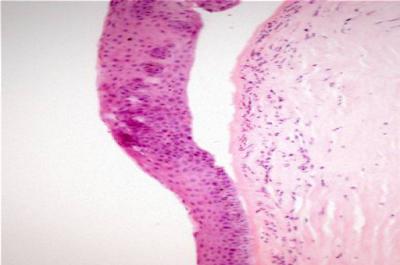 Patologi Kornea Mata pada Hewan